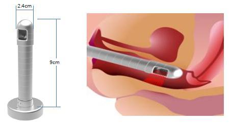 Laser vaginal rejuvenation uk