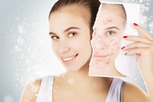 acne scar is text for showing below image is that good